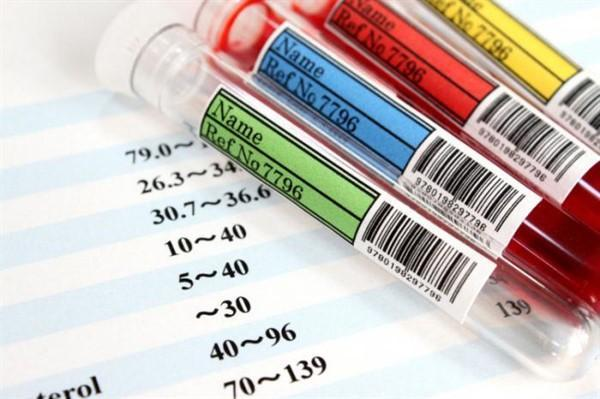 Какая группа крови является самой редкой?