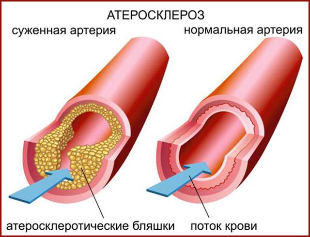 Опасность высокого уровня холестерина и способы его нормализации