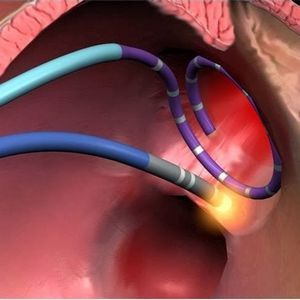 1cb6129c0dcc1024cb03c06652cdfdef - The essence of heart ablation indications of how the postoperative period goes