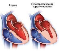 Разновидности кардиомиопатии, методы ее диагностики и лечения