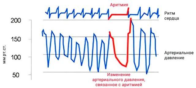 Что влияет на значение пульсового давления?