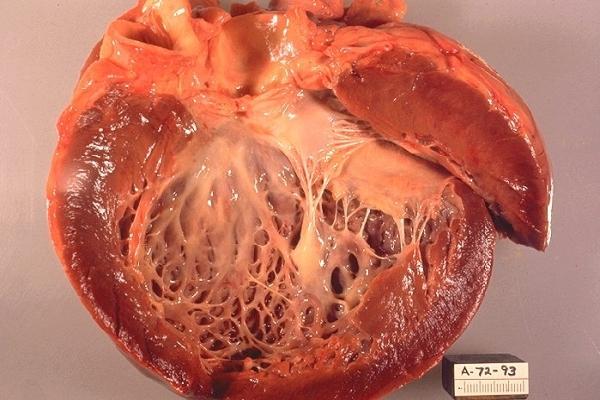 Что такое алкогольная кардиомиопатия симптомы лечение