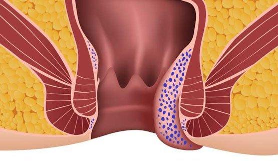 Наружный геморрой: симптомы, причины и методы лечения