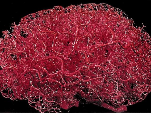 20e9d654cb9a0eaa5a02e5d5952bc576 - Malformation artério-veineuse des vaisseaux cérébraux