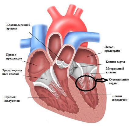 Почему возникает дополнительная хорда сердца