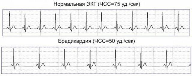 Брадикардия сердца у ребенка: симптомы, признаки, лечение
