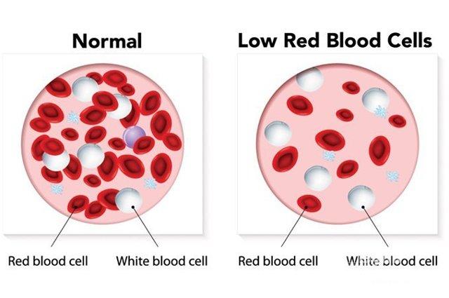 Признаки различных степеней анемии и ее лечение