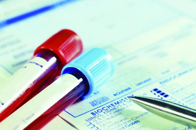 Как и какие анализы крови проводятся при лимфоме?