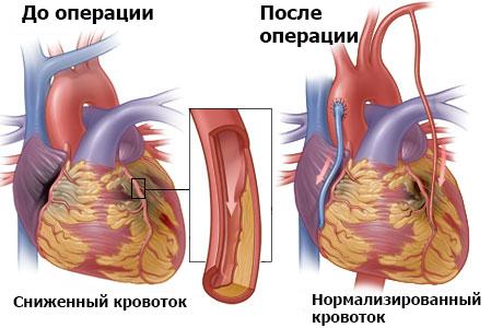 Реваскуляризация миокарда цель способы - традиционные и современные как проводится