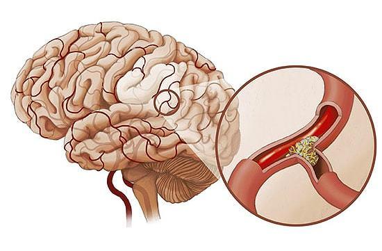 Капельные вливания для восстановления кровоснабжения мозга
