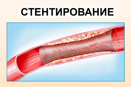Симптомы и лечение тромбов в сердце