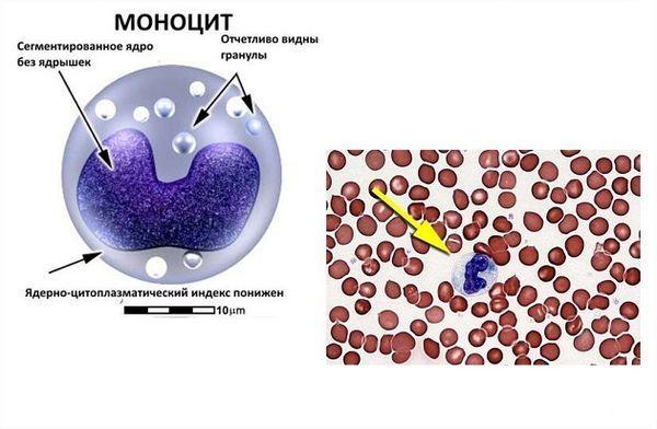 О чем говорит и как проявляется повышенный уровень моноцитов?
