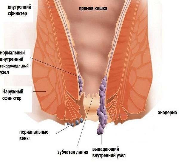 Внутренний геморрой: причины и лечение