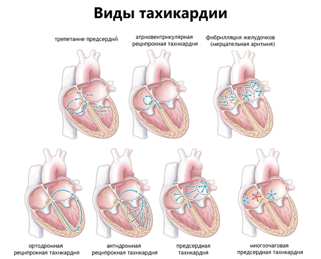 279cffdd070d937844884017a67237bd - Tachycardia and heart attack symptoms diagnosis and treatment