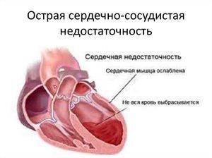 Профилактика и лечение сердечно-сосудистой недостаточности