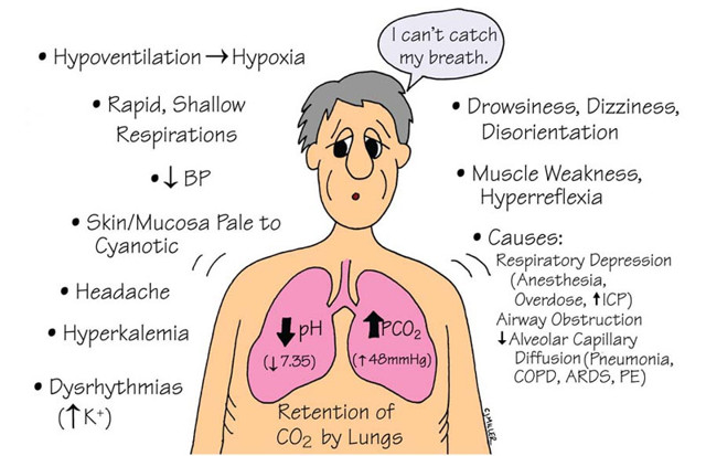 Разновидности и причины возникновения ацидоза