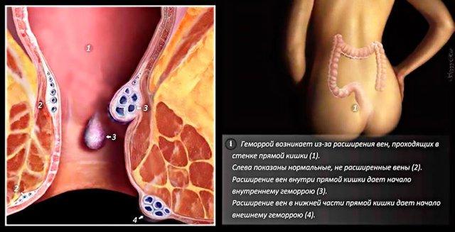 Геморрой на начальной стадии — симптомы, профилактика и лечение
