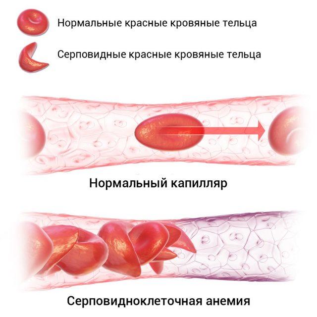 Диагностика и лечение серповидноклеточной анемии