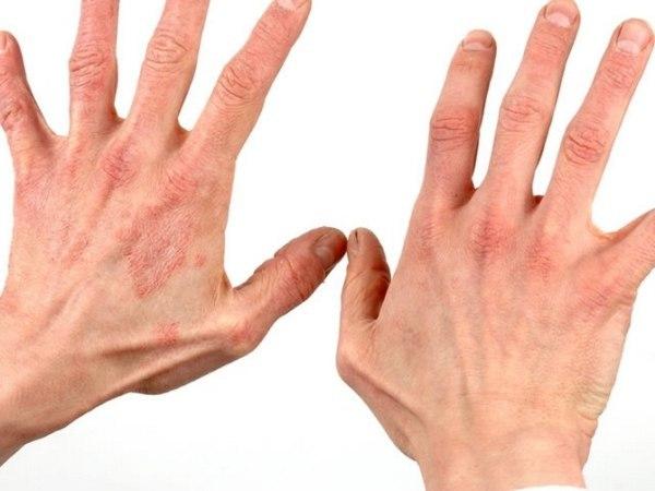 Анемия и пониженный гемоглобин: что это такое?