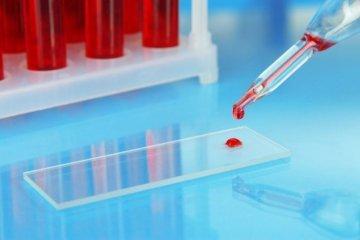 Все способы борьбы с высоким уровнем СОЭ в крови