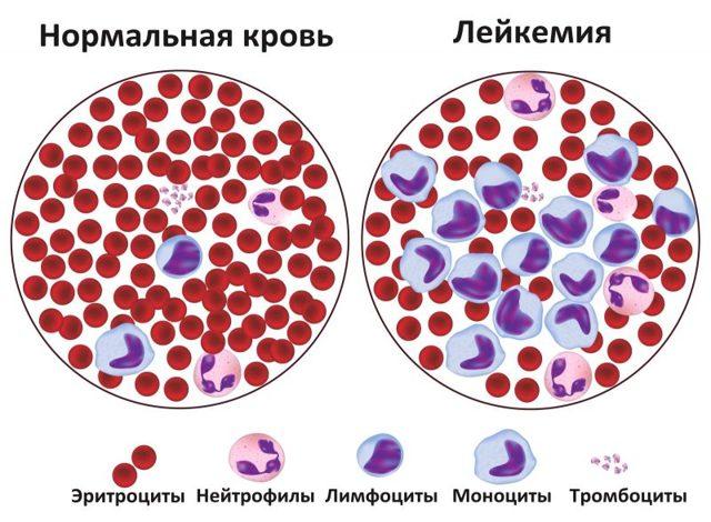 Лейкемия: причины и симптоматика болезни