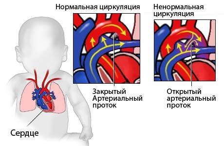 Операция порок сердца у новорожденных