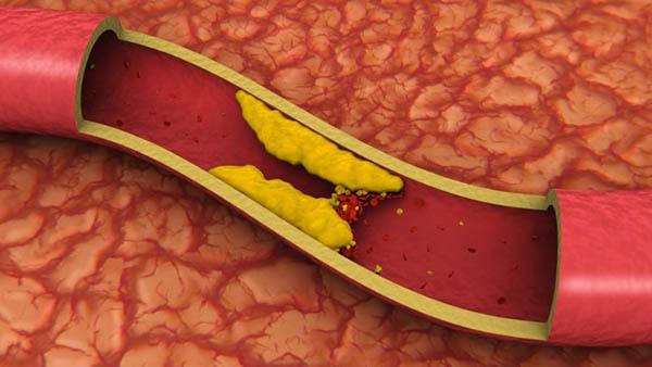 Как избавиться от холестериновых бляшек?