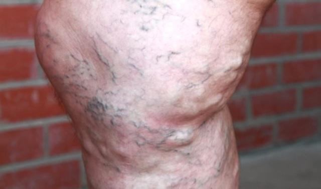 Действенные методики лечения варикоза на ногах у мужчин