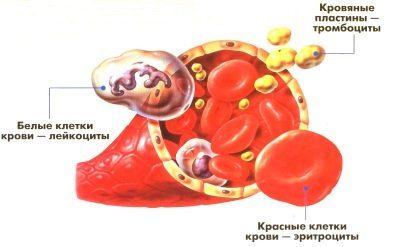 Отклонение уровня тромбоцитов от нормы при беременности