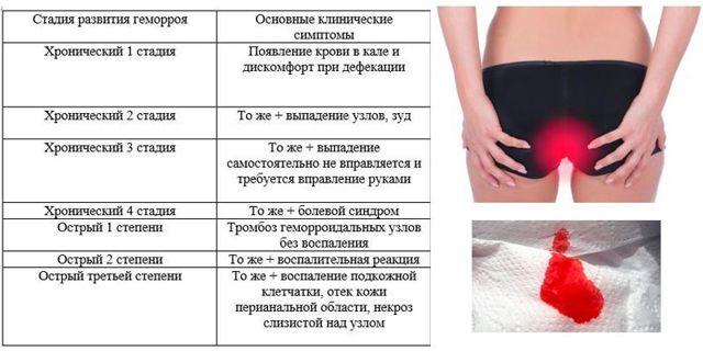 Внутренний геморрой у женщин: симптомы и лечение