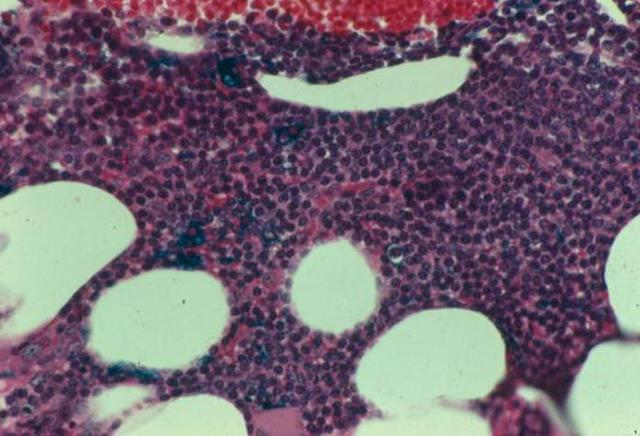 Причины развития различных типов лейкемоидной реакции