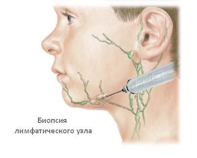 Воспаление лимфоузлов: как лечить у взрослых и детей