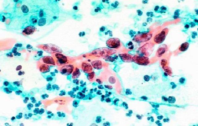 Послеродовой лейкоцитоз – признак осложнений или показатель нормы?