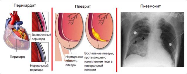 Виды, диагностика и лечение синдрома Дресслера