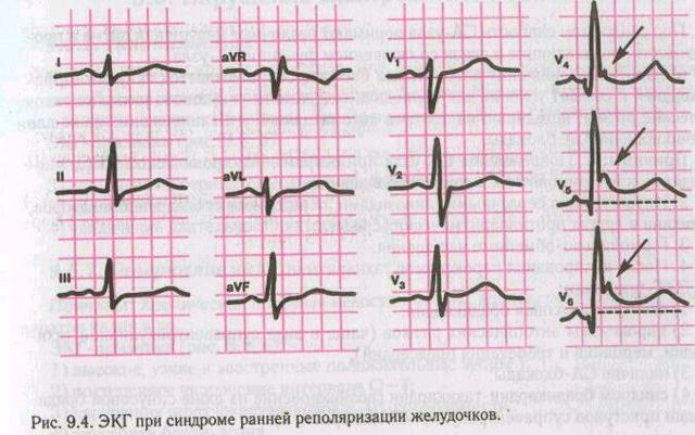 Характер и опасности синдрома ранней реполяризации желудочков