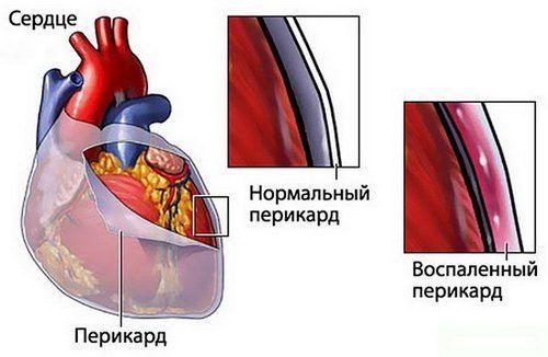 Ревмокардит симптомы причины диагностика и лечение