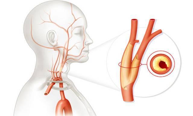 Лечение и причины атеросклеротических бляшек в сонных артериях