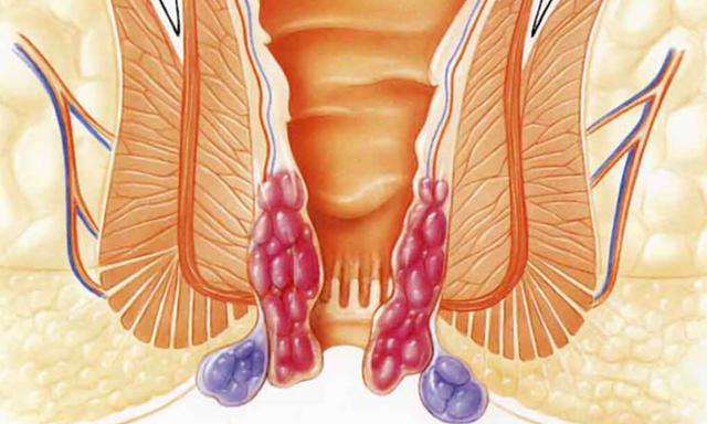 Причины появления геморроидальных шишек, симптомы и лечение
