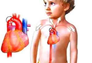 Причины, лечение и прогноз при аортальной недостаточности