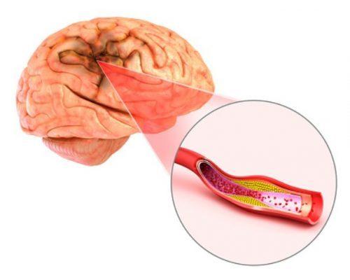 Транскраниальное сканирование сосудов головного мозга