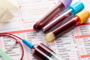 Причины снижения и повышения содеражния эритроцитов в крови