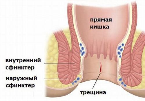 Симптомы и лечение мокнущего геморроя