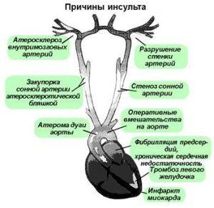 Причины, симптомы и лечение обширного инсульта