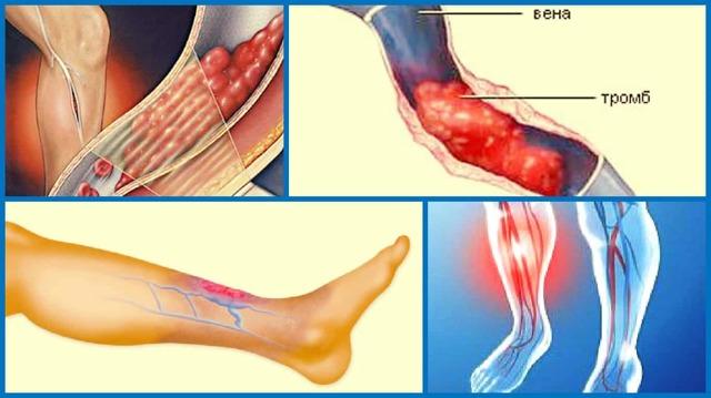Каковы признаки тромбоза вен и как его лечить?