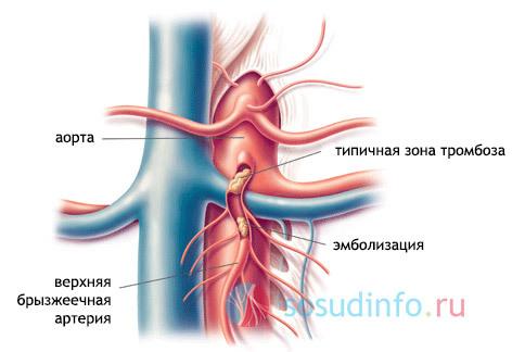 Симптомы и методы лечения склероза сердечной аорты