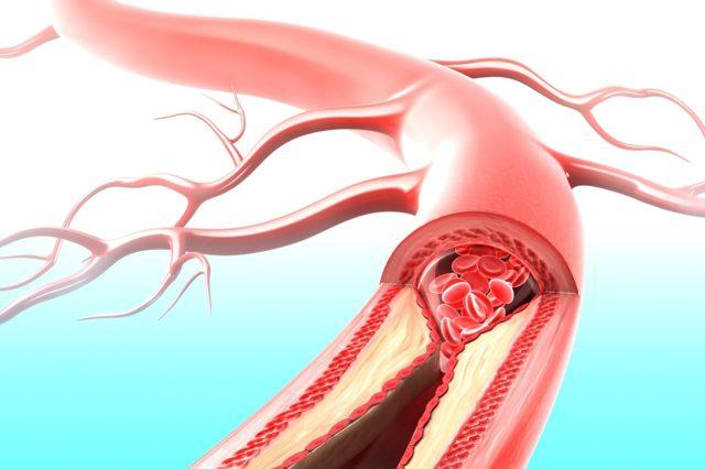Причины, методы лечения и профилактики стеноза почечной артерии