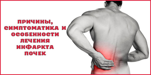 Основные сведения про причины, симптомы и лечение инфаркта почки