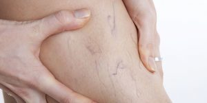 Насколько опасен варикоз для беременных?