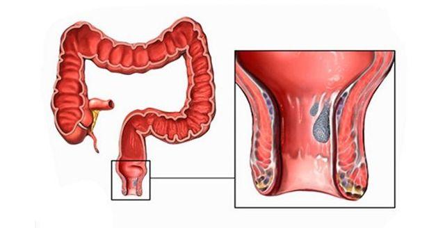 Чем лечить внутренний геморрой с кровью?