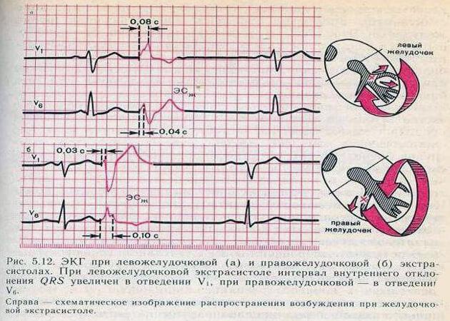 Причины появления желудочковой экстрасистолии: что это, когда необходимо делать операцию, классификация заболевания и лечение